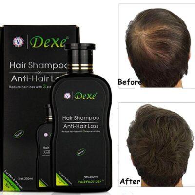 shampo dexe rigjeneron floket stimulon floke te rinj